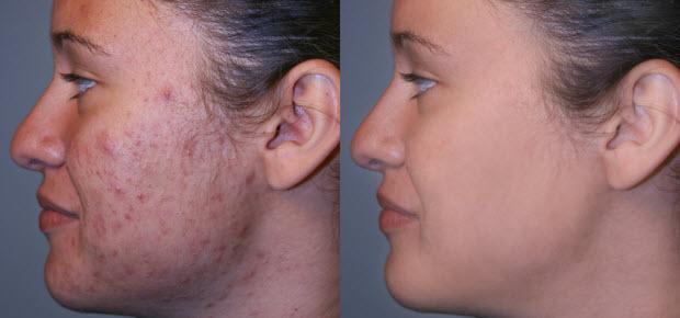 Before & after acne laser treatment reduction using the erbium and pixel laser