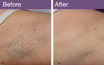 Before & After laser hair removal results for excess hair.