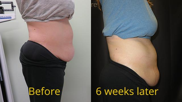 Before & after 6 weeks of a Sculpsure procedure of a patient's stomach.