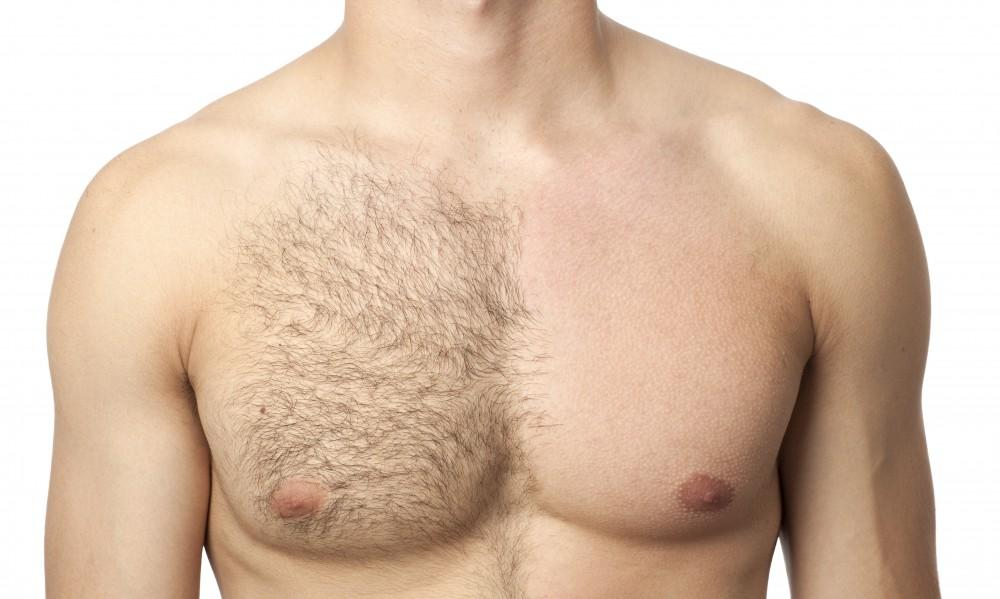Diode laser hair removal for chest hair.