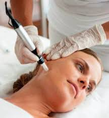 Acne scarring laser treatment procedure on a patient.