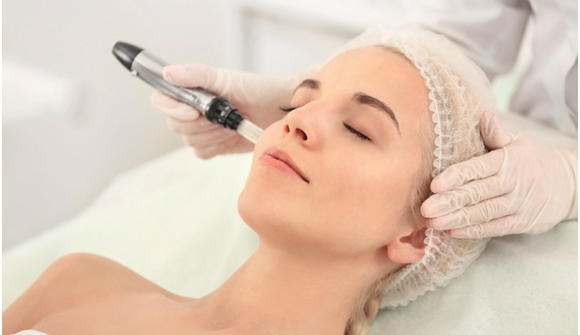 Image result for microneedling