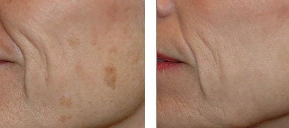 Laser Spot Removal treatment on a patient's cheek.